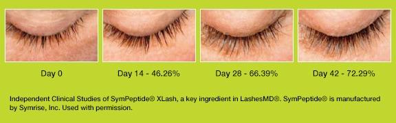 e2ea81a7169 LashesMD® - Henry Schein Medical