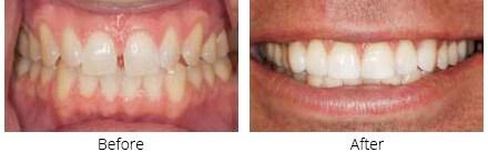 Obsidian - Zahn Dental Labs